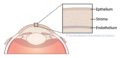 corneal-x-section-co.jpg